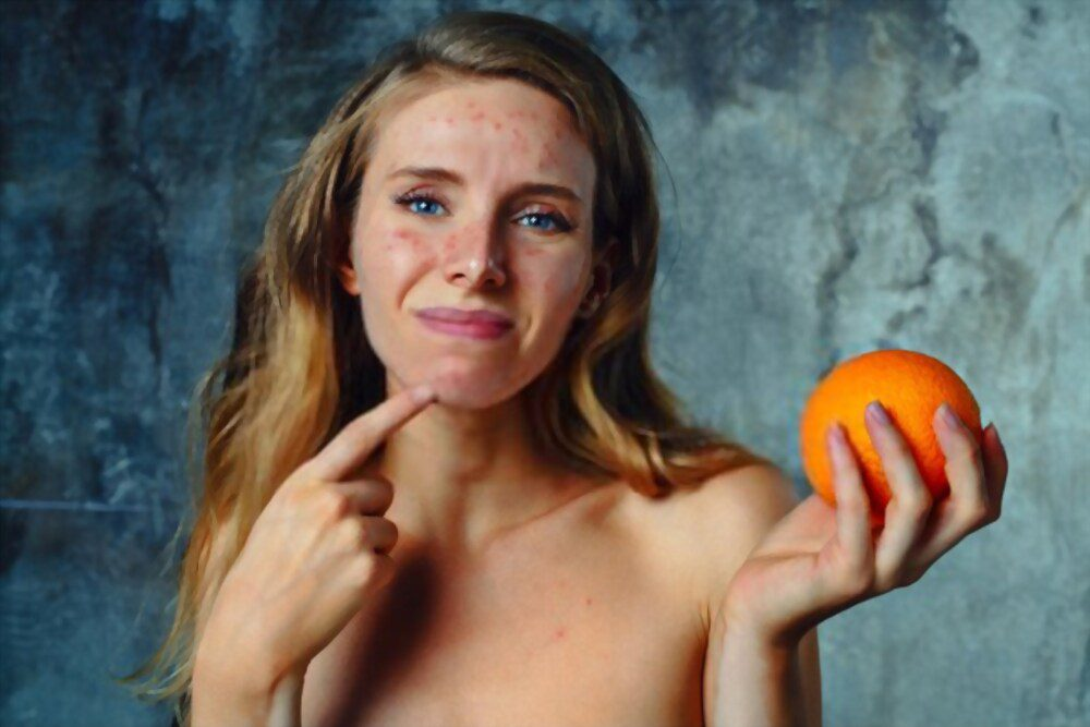 The young woman has an allergy to orange. The Face has a lot of acne and she is very unhappy.