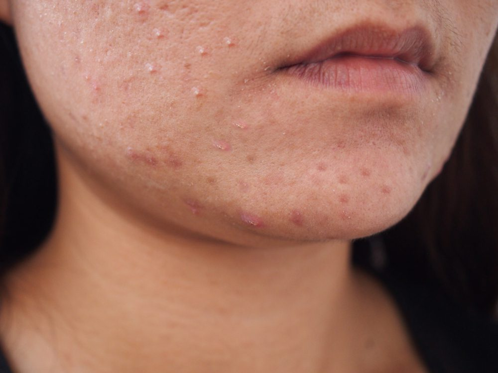 A closeup view of a women with acne on the chin and face.