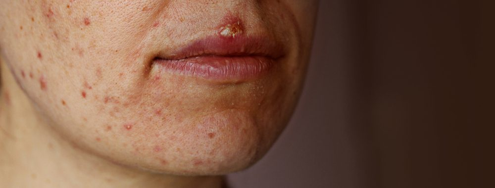 Acne on the chin, jawline, cheeks, and herpes on the lips.