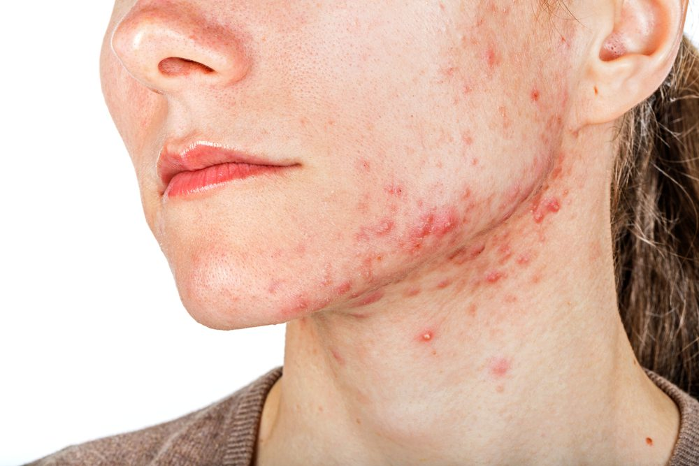 A young girl with cystic acne or skin problem.